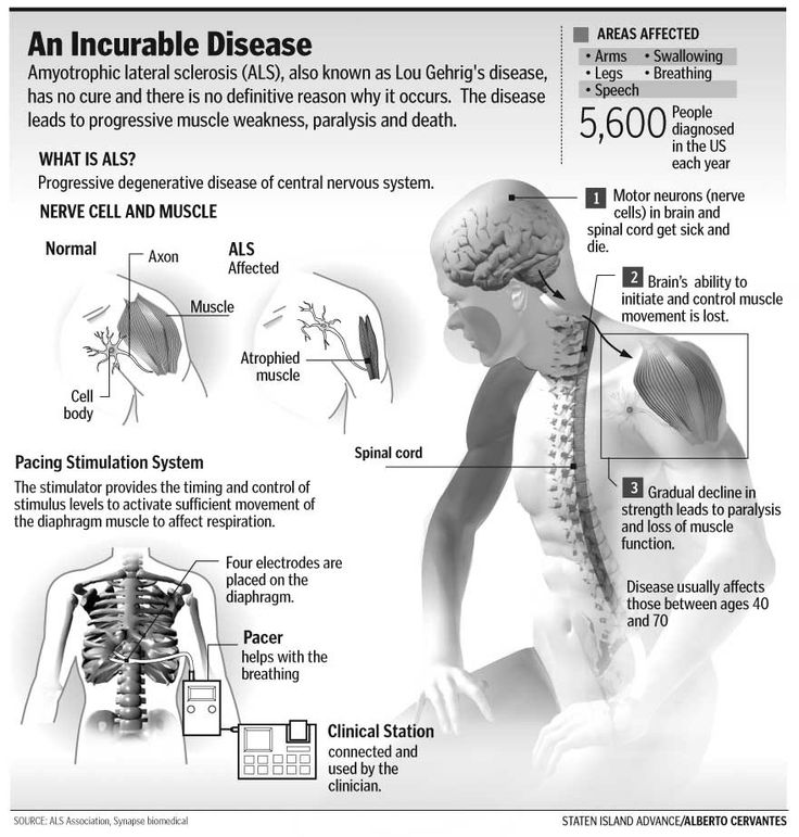 Amyotrophic Lateral Sclerosis (ALS)/Lou Gehrig's Disease