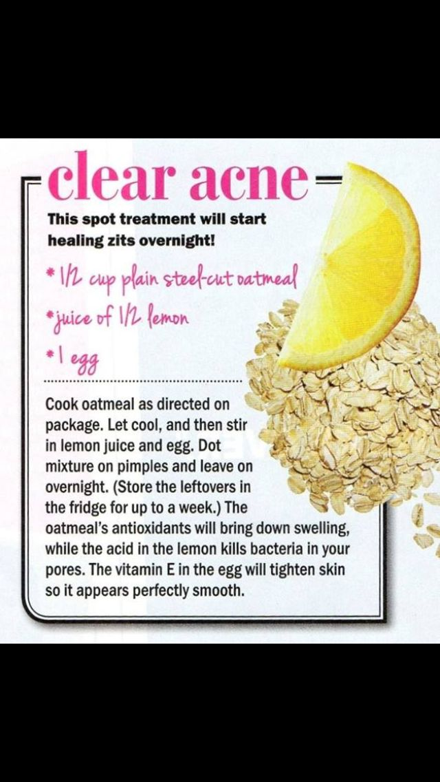 How To Clear Pimples Overnight Naturally