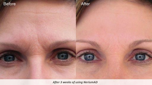 how to use nerium eye patch