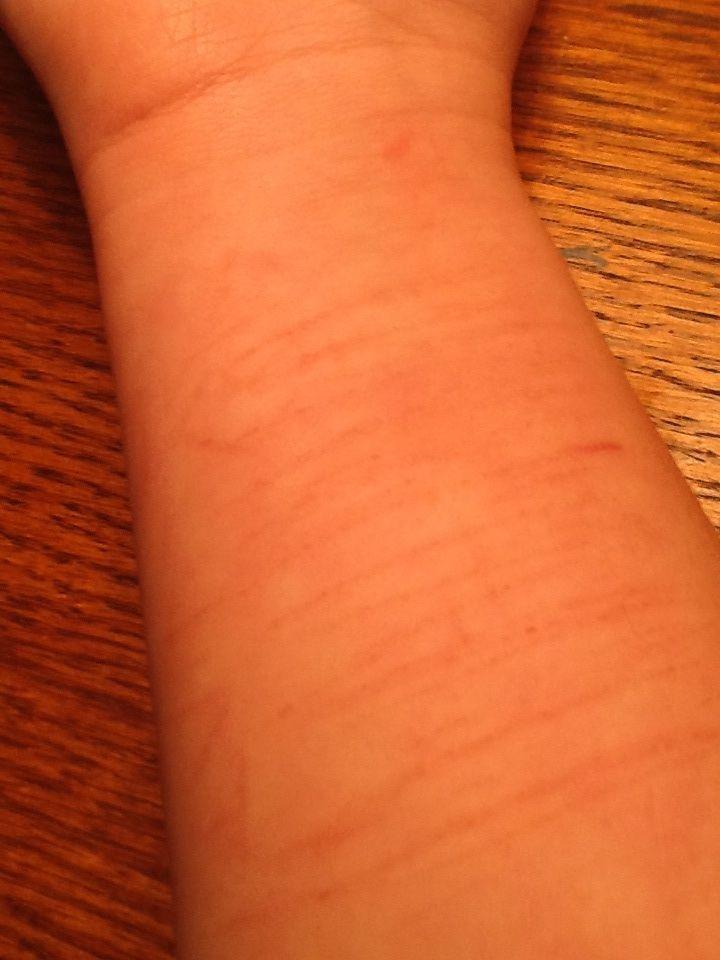 Pics Photos - Self Harm Scars