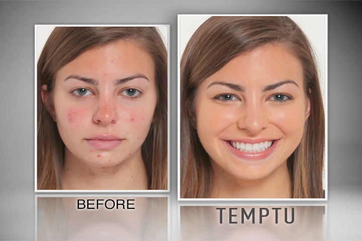 Amazing Before & After results using TEMPTU AIRbrush Makeup- great for covering acne