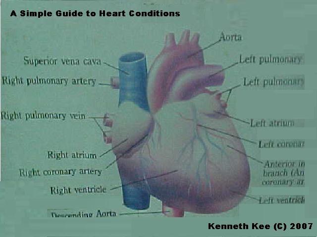 american heart association congenital heart disease guidelines