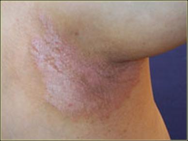 Pin by Karmen Hosé on Vitamin B6 Help and Signs   Pinterest B12 Deficiency Skin