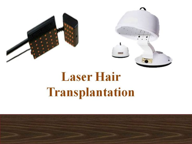 pictures Laser combs for hair loss are effective Are they safe to use Do they have any side effects