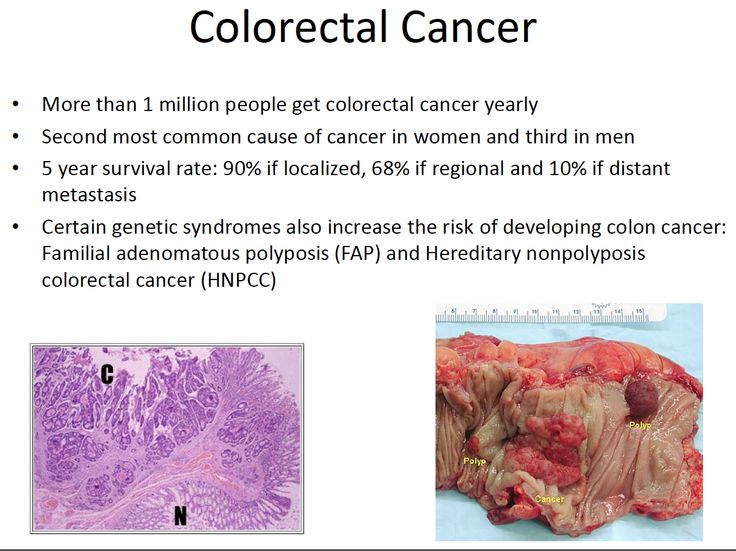 colorectal cancer Current and accurate information for patients about colorectal cancer treatment learn about treatment options, how the treatment is performed, what happens during therapy, common side effects and more.