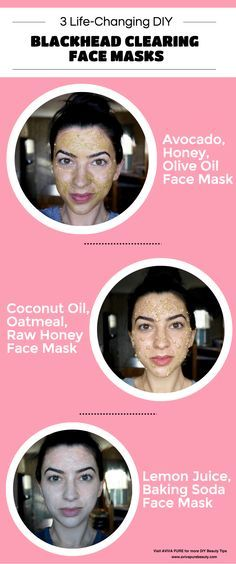 24 Simple Home Remedies To Remove Blackheads Permanently 24 Simple Home Remedies To Remove Blackheads Permanently new images