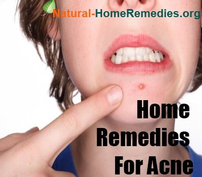 home remedies for acne fast