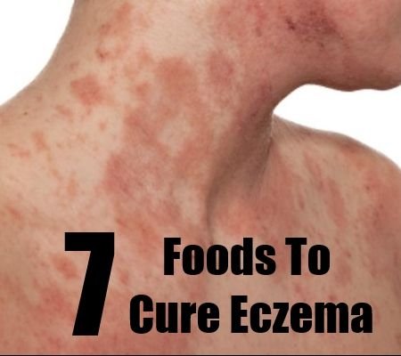 Natural Foods For Eczema