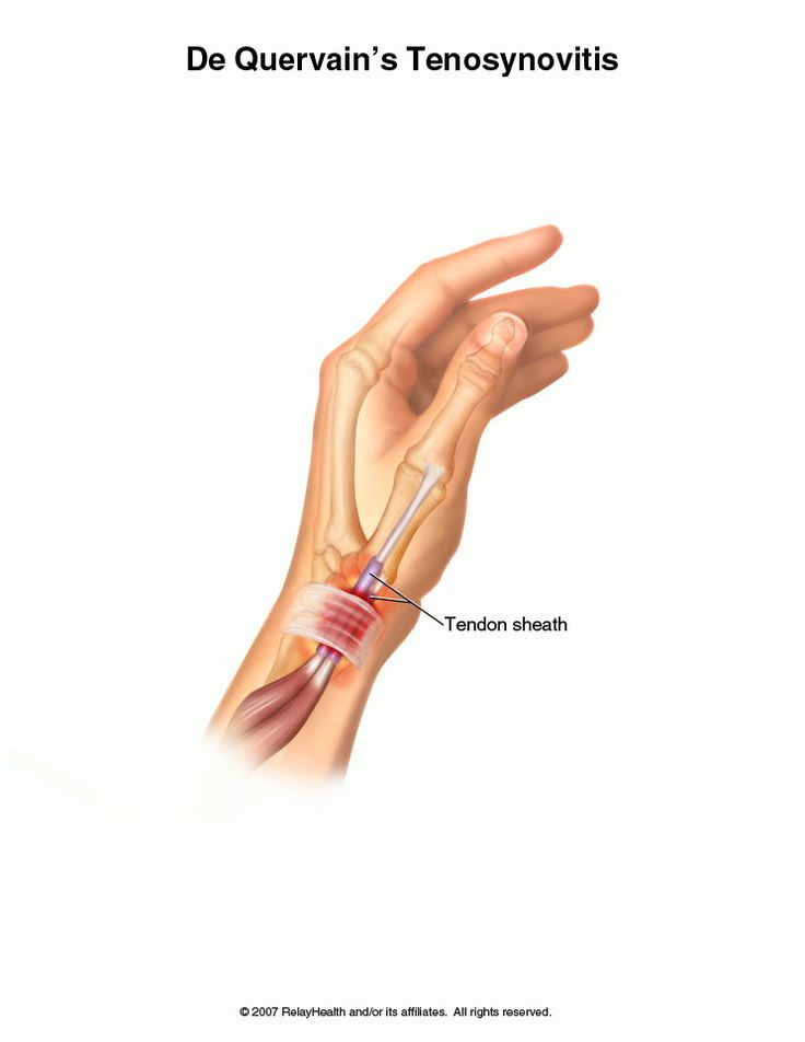 How to Treat Wrist Tendonitis forecasting