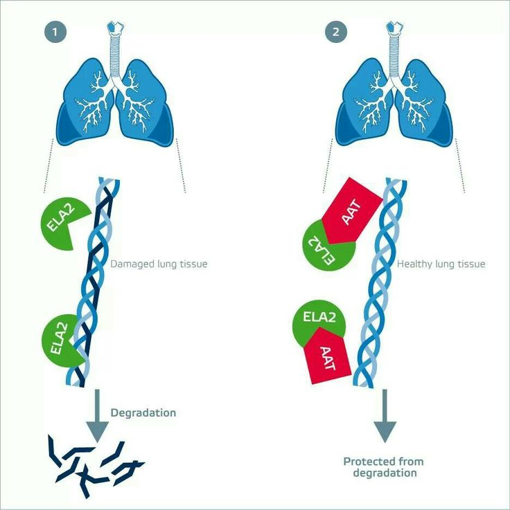alpha 1 Alpha-1 antitrypsin (aat) deficiency is a genetic disorder that is passed on in families and affects the lungs, liver and skin when this condition affects the lungs, it causes emphysema, a part of copd (chronic obstructive pulmonary disease) along with.