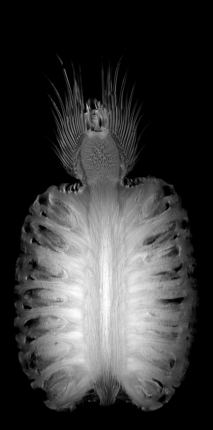 Pineapple MRI. So cool!