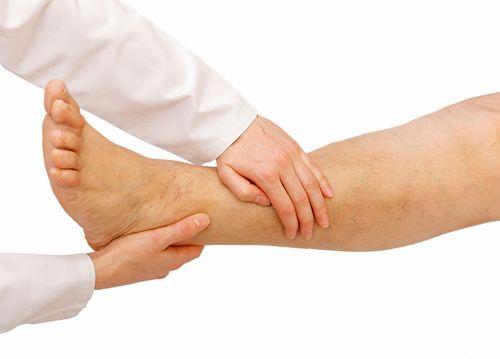 Edema: Swollen Feet and Legs