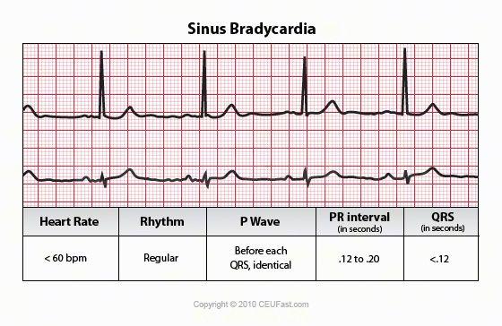Man, that ekg strip of atrial bradycardia fast and Good