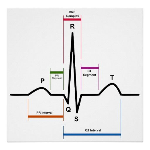 Heartbeat Diagram Day43 100 Day Design Challenge