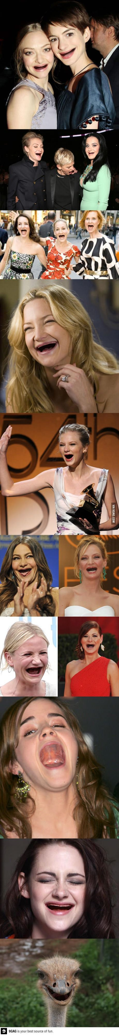 Teeth- They make a difference. Celebs without teeth
