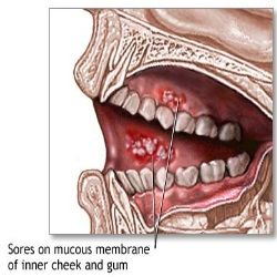 orajel for cold sores look like