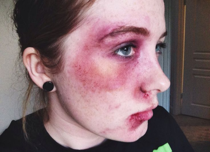 Makeup Ideas bruise makeup : Black eye/bruising makeup : Makeup Morgue : Pinterest