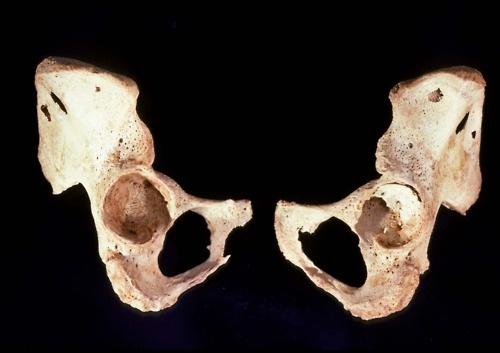 Osteoporosis of the os coxae | Bones | Pinterest