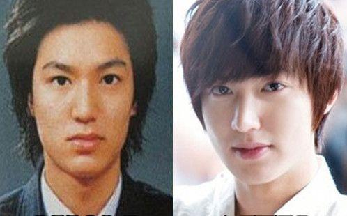 Lee min ho plastic surgery celebrity plastic surgery pinterest