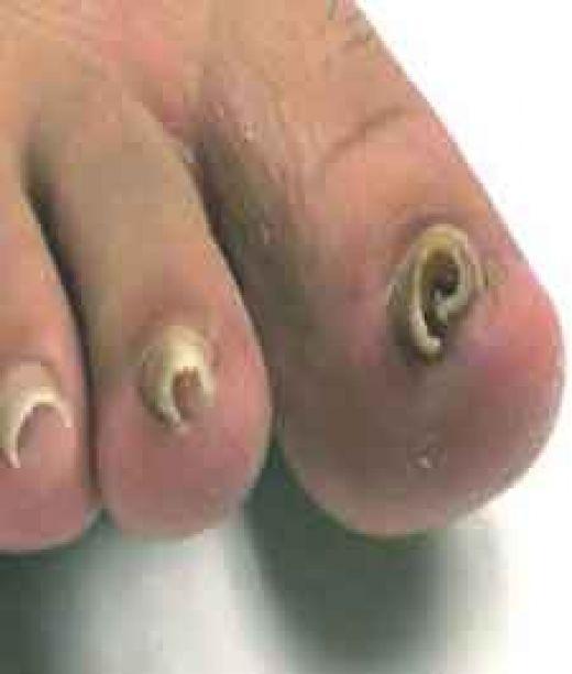 Badly Infected Ingrown Toenail Treating Ingrown ToeNa...