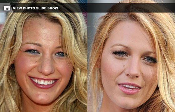 Blake Lively's nose job | Hair and Beauty | Pinterest Blake Lively Nose