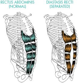 Diastasis Recti Abdominal Separation - Post-pregnancy; What it is and how to spot it