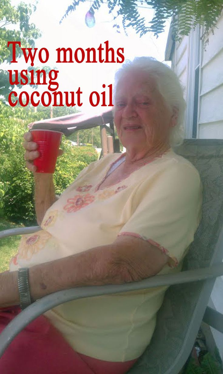 "Coconut oil has been added to mom's coffee, hot chocolate and several warm food items. After two months, she appears stronger, more alert, healthier and more involved. Coconut oil for Alzheimer's disease ""may"" be working."