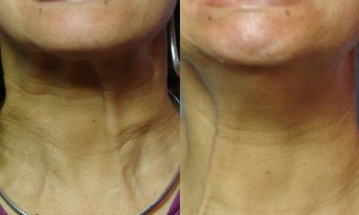 how to stop neck wrinkles