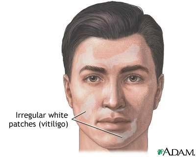 ... Between Vitiligo, Thyroid Disease, and Other Autoimmune Diseases