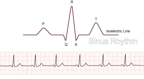determining heart rate by rhthym strip