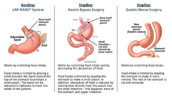 gastric bypass versus sleeve gastrectomy As sleeve gastrectomy is a rapid and less traumatic procedure with good short-term results of weight loss and resolution of comorbidities, the investigators initiated a prospective randomized two-center study comparing laparoscopic sleeve gastrectomy (lsg)with laparoscopic gastric bypass (lgb) in the treatment of morbid obesity.
