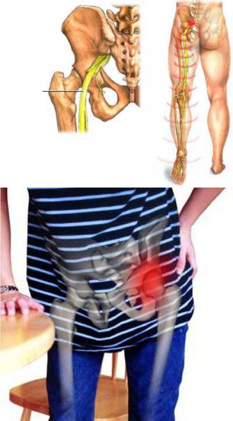 Препараты От Склероза