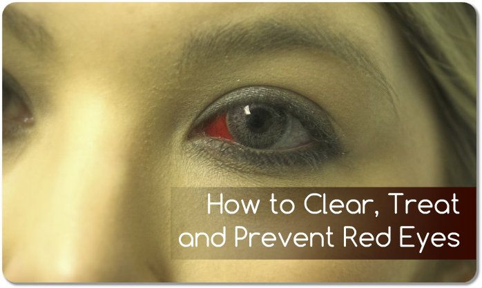 how to get rid of tired red eyes fast