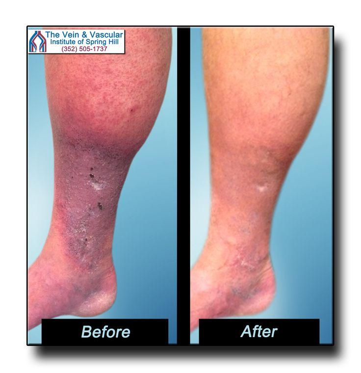How to Improve Leg Circulation