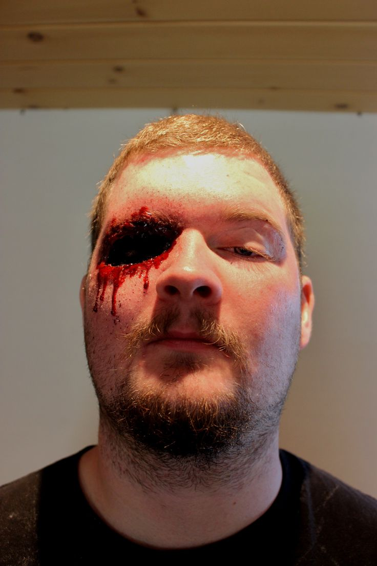 halloween contact lenses cause blindness