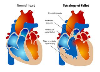 ventricular outflow tract malformations