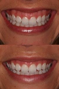 Excessive gums(gummy smile),swollen gums or uneven gum line may seriously compromise the overall appearance of the smile. Laser gum re contouring is a procedure that can correct gum problems and improve oral health and smiles.