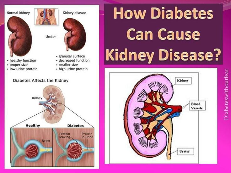 Solutions for Diabetic Itching Problems
