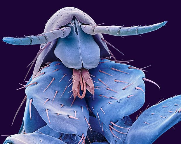 coloured scanning electron micrograph of the head of a human flea (Pulex irritans)