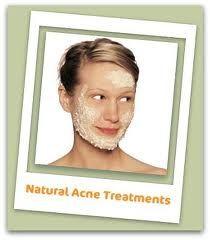 Best Body Acne Treatment | DIY beauty | Pinterest
