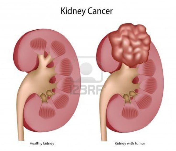 Kidney Pain Location Kidney Pain Causes, Lo...