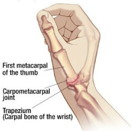 I've got this: Top 5 Treatment Methods For Thumb Osteoarthritis By Kasturi Jha on March 8, 2013 18 Thumb OsteoarthritisThumb osteoarthritis, also known as the basal joint arthritis is one of the most common forms of arthritis that affects the hand, limiting a person from doing the daily chores. This condition develops with the wearing away of the cartilage, which mostly cushions the adjacent ends of the bones that makes the joints of the thumb.