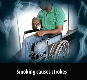 Smoking Causes Strokes  Death Against Smoking  Pinterest. Rheumatoid Arthritis Rib Pain. General Education Degree Dui Attorney Boulder. Penn State University Online Programs. Food That Help Digestion Manage Linux Servers. Marketing For Dental Office Mt View Dental. How To Do A Juice Cleanse At Home. Application Of Big Data Wood Garage Door Cost. Automotive Engineering Qualifications
