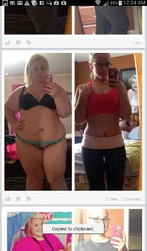 I Lost 30 Pounds With Stomach Balloons