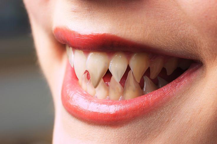 sharp teeth  fangs  -KumiHumans With Sharp Teeth