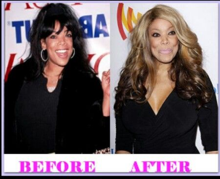 Wendy Williams Plastic Surgery Before After Photos | Rachael Edwards