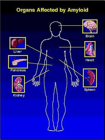 Multiple Myeloma Life Expectancy | Amyloidosis | Pinterest
