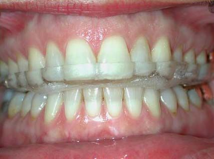 Ways to Stop Teeth Grinding at Night recommendations