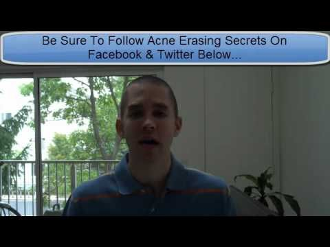 Acne Erasing Secrets Spread The Word! | Clear Skin & Acne Treatment V ...