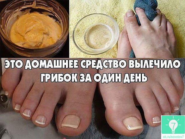 Лекарство от грибка на ногтях в домашних
